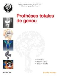 Prothèses totales de genou - 1st Edition - ISBN: 9782294749162, 9782294751813