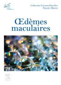 Oedèmes maculaires - 1st Edition - ISBN: 9782294749490, 9782294750786