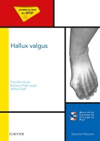 Hallux valgus - 1st Edition - ISBN: 9782294750663, 9782294752544