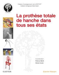 La prothèse totale de hanche dans tous ses états - 1st Edition - ISBN: 9782294751165, 9782294758188