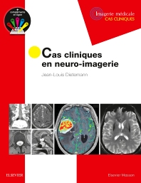 Cas cliniques en neuro-imagerie - 1st Edition - ISBN: 9782294751998, 9782294752445