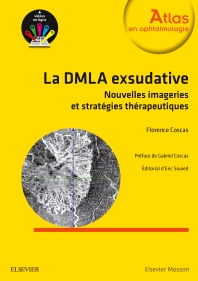 La DMLA exsudative  - 1st Edition - ISBN: 9782294753725, 9782294756351