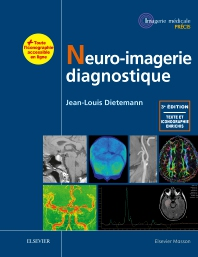 Neuro-imagerie diagnostique - 3rd Edition - ISBN: 9782294753947, 9782294754777