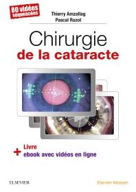 Chirurgie de la cataracte - 1st Edition - ISBN: 9782294757372, 9782294757938