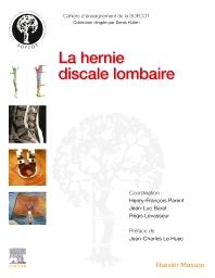 La hernie discale lombaire - 1st Edition - ISBN: 9782294762864, 9782294764233