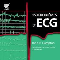 150 problèmes d'ECG  - 1st Edition - ISBN: 9782810101498, 9782294103032