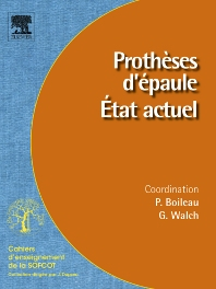 Prothèses d'épaule. État actuel - 1st Edition - ISBN: 9782842999353