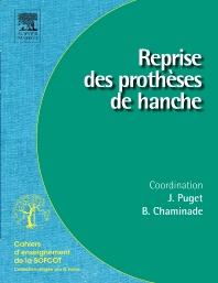 Reprise des prothèses de hanche - 1st Edition - ISBN: 9782842999384, 9782994100331