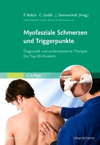 Myofasziale triggerpunkte