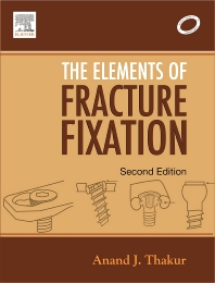 Elements of Fracture Fixation - 2nd Edition - ISBN: 9788131203385, 9788131231678