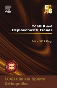 Total Knee Replacement: Trends - ECAB - 1st Edition - ISBN: 9788131221303, 9788131232361