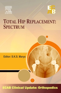 Cover image for Total Hip Replacement Spectrum - ECAB