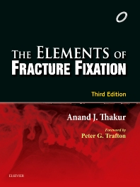 Cover image for Elements of Fracture Fixation