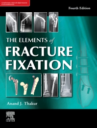 The elements of fracture fixation, 4e - 4th Edition - ISBN: 9788131256558