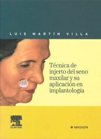 Técnica de injerto del seno maxilar y su aplicación en implantología - 1st Edition - ISBN: 9788445815168