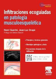 Infiltraciones ecoguiadas en patología musculoesquelética - 1st Edition - ISBN: 9788445825297, 9788445825914