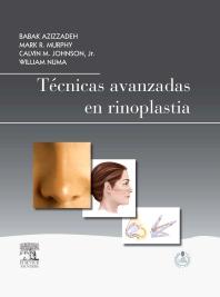 Cover image for Técnicas avanzadas en rinoplastia + StudentConsult en español