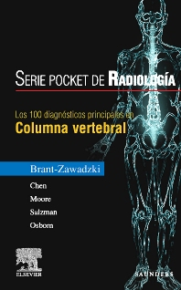 Serie Radiología Clínica: Los 100 diagnósticos principales en columna vertebral