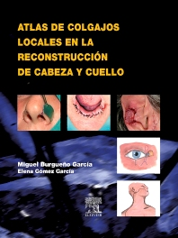 Atlas de colgajos locales en la reconstrucción de cabeza y cuello - 1st Edition - ISBN: 9788481749625, 9788480867887