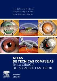 Atlas de técnicas complejas en la cirugía del segmento anterior - 1st Edition - ISBN: 9788490223024, 9788490225189