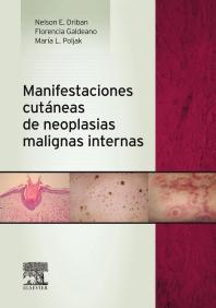 Manifestaciones cutáneas de neoplasias malignas internas - 1st Edition - ISBN: 9788490225288, 9788490226667