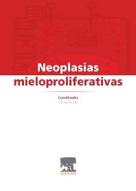 Neoplasias mieloproliferativas - 1st Edition - ISBN: 9788490226568, 9788490226483