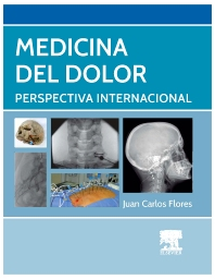 Medicina del dolor - 1st Edition - ISBN: 9788490226643, 9788490226650