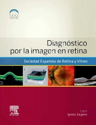 Diagnóstico por la imagen en retina - 1st Edition - ISBN: 9788490227213, 9788490227916