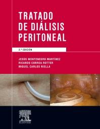 Cover image for Tratado de diálisis peritoneal
