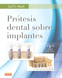 Cover image for Prótesis dental sobre implantes