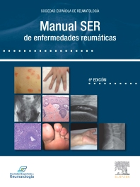 Cover image for Manual SER de enfermedades reumáticas