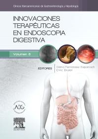 Innovaciones terapéuticas en endoscopia digestiva - 1st Edition - ISBN: 9788490229538, 9788491130659
