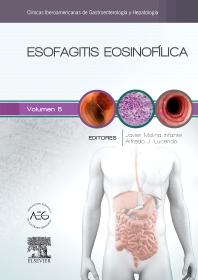 Cover image for Esofagitis eosinofílica