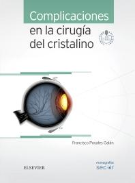 Complicaciones en la cirugía del cristalino + acceso web - 1st Edition - ISBN: 9788491130345, 9788491130796
