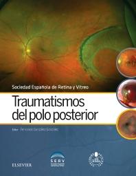 Traumatismos del polo posterior - 1st Edition - ISBN: 9788491130529, 9788491130826