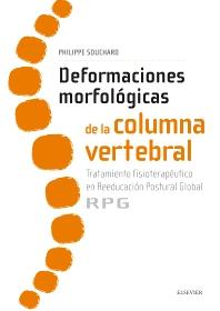 Deformaciones morfológicas de la columna vertebral - 1st Edition - ISBN: 9788491130635, 9788491130734