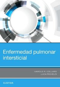 Cover image for Enfermedad pulmonar intersticial