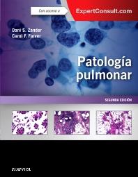 Cover image for Patología pulmonar