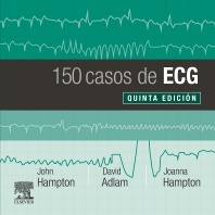150 casos de ECG - 5th Edition - ISBN: 9788491135043, 9788491137146