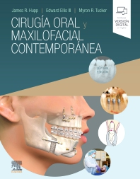 Cirugía oral y maxilofacial contemporánea - 7th Edition - ISBN: 9788491136354, 9788491137627