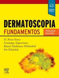 Cover image for Dermatoscopia