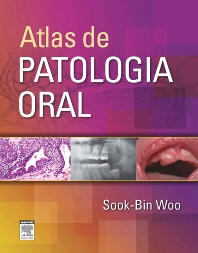 Atlas de Patologia Oral - 1st Edition - ISBN: 9788535268201, 9788535269826