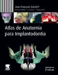 Atlas de Anatomia para Implantodontia - 1st Edition - ISBN: 9788535269130, 9788535269857