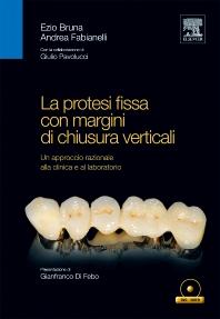 La protesi fissa con margini di chiusura verticali - 1st Edition - ISBN: 9788821428159, 9788821434013