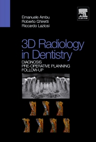 3D radiology with small field of view - 1st Edition - ISBN: 9788821429712, 9788821434051