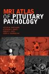 MRI Atlas of Pituitary Pathology, 1st Edition,Kevin Pantalone ,Stephen Jones,Robert Weil,Amir Hamrahian,ISBN9780128025772