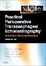 Practical Perioperative Transesophageal Echocardiography, 2nd Edition,David Sidebotham,Alan Merry,Malcolm Legget,ISBN9780702034275
